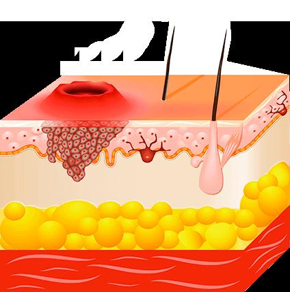 You are viewing posts in: Tratament pentru verucă în nas